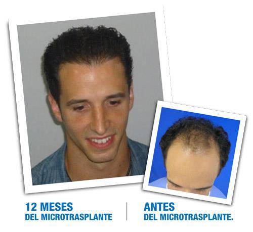 Medical Hair Tratamiento Capilar