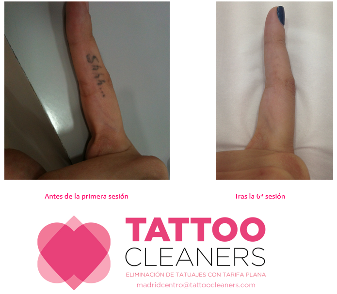 Tattoo Cleaners Micropigmentación